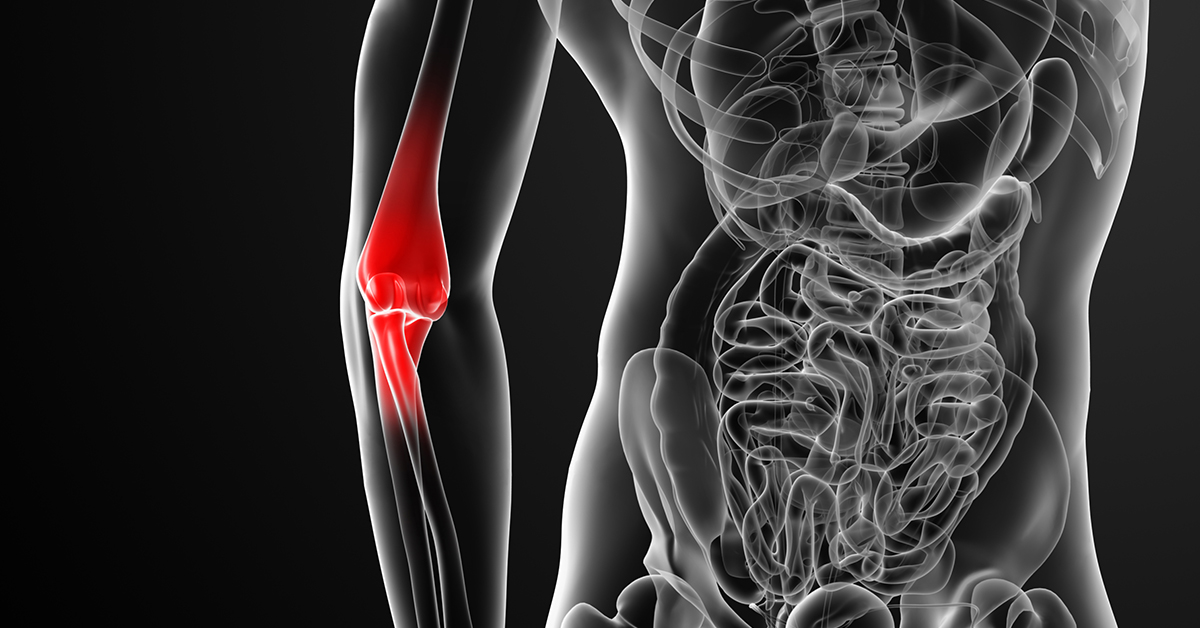 Growth Plate Injuries of the Elbow